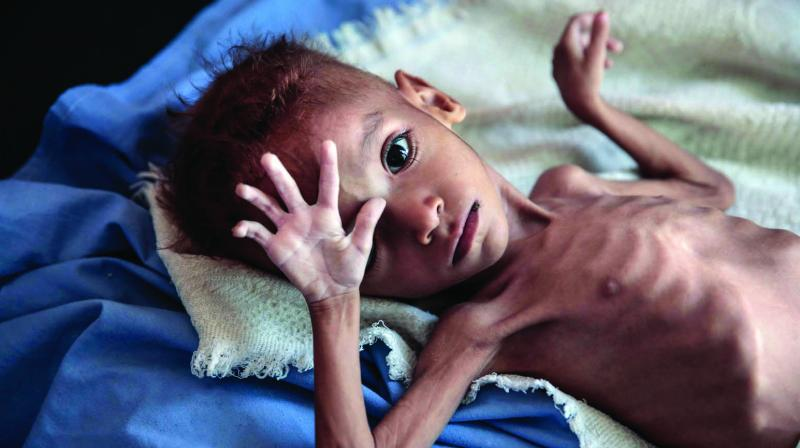 What causes malnutrition?