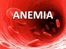 Anemia | Deficiency of iron: